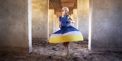 Albinos en Tanzania, denuncia y compromiso en las fotos de Ana Palacios en Espaciofoto