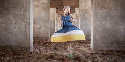 Albino, un proyecto de Ana Palacios sobre el colectivo albino de Tanzania